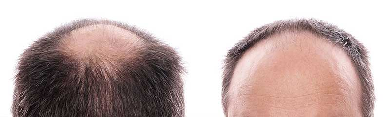 5 New Hair Loss Cure Options