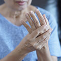 How to Prevent Arthritis