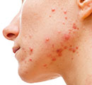 What Causes Acne in Adolescents and Adults? Dispel the Myths